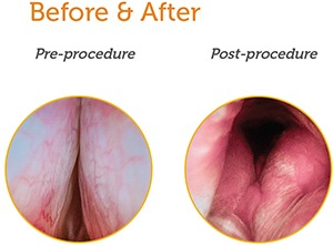 UroLift® System Procedure